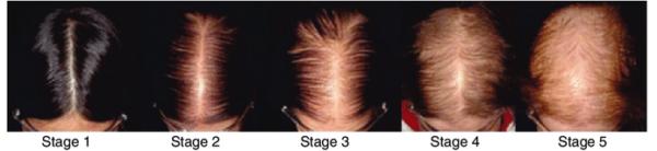 A escala de Sinclair -alopecia-feminina-