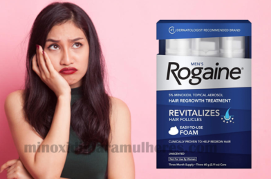 Estudo concluiu – Mulheres podem utilizar a versão masculina do minoxidil!