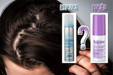 Minoxidil resseca o cabelo ou deixa ele oleosos? O que fazer?